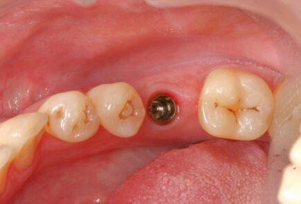 Имплантация зубов в Москве: как избежать неприятных сюрпризов